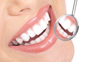 Tártaro dental